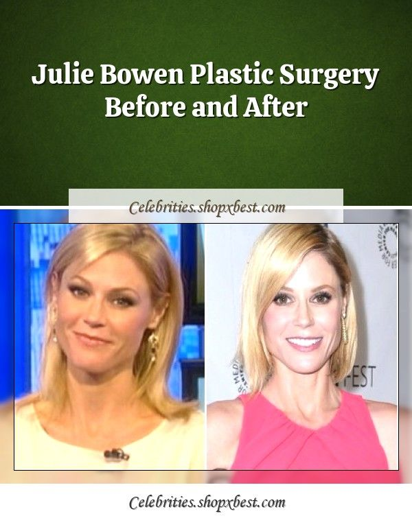 Julie Bowen Plastic Surgery Before And After Julie Bowen Plastic Surgery Celebrity Surgery