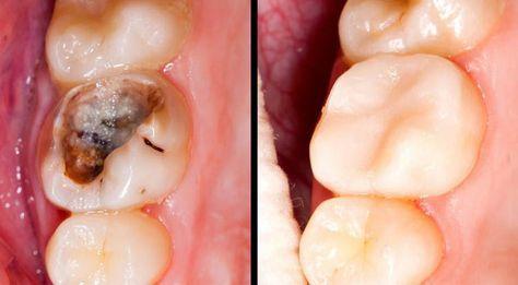 A verdade é que existem várias maneiras de reverter naturalmente as cáries dos dentes.
