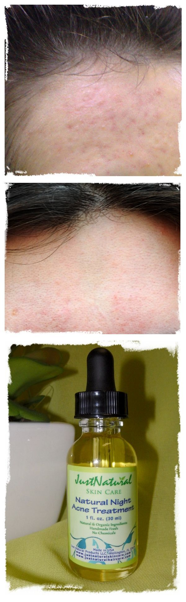 I started getting acne around age 15, face, back, …