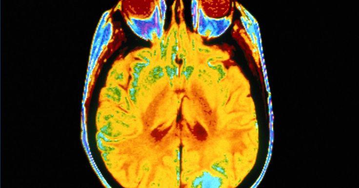 Como sobreviver a tremores no cérebro. Tremor no cérebro é um termo popular usado por alguns blogueiros da internet descrito como uma sensação elétrica. Aqueles que reclamam de sentir tremores no cérebro recentemente pararam ou estão tomando certos antidepressivos chamados inibidores seletivos da recaptação da serotonina (ISRSs). Esses medicamentos afetam os níveis de serotonina ...