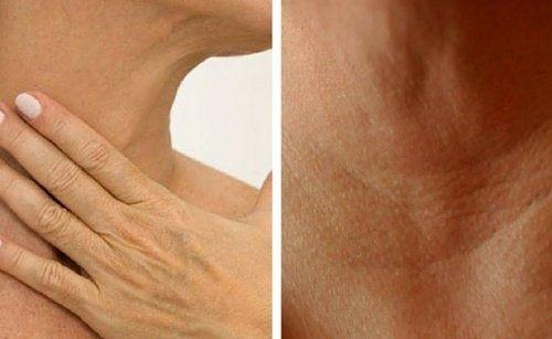 4 traitements naturels pour prévenir l'apparition de rides dans le cou et sur les mains