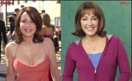 Patricia Heaton made tabloid headlines with her well orchestrated plastic surgery consisting of a tummy tuck, breast augmentation, and liposuction