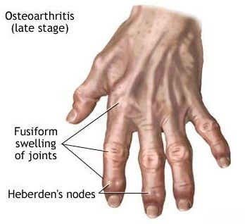 Remedios caseros para la artritis