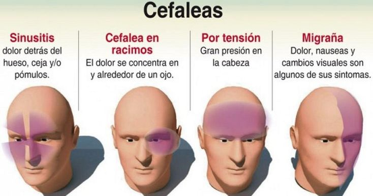 ¿Conoces las diferencias entre las cefaleas tensionales y las migrañas?