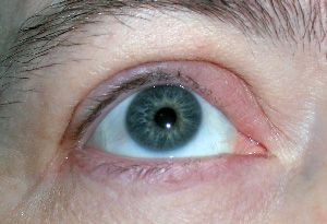 Two big don'ts when treating a stye:   Never squeeze- you'll just spread the infection-eyelid tissue is so loose, infection is easy to spread. Never poke with a needle-it makes the area 10 times worse. See a Dr.  See doctor if:  Heat hasn't helped in 1 day, OR Soreness isn't gone in 2 days, OR eyelid looks worse (rare). More rare is if redness/swelling extends into face. If that happens, get to Dr.! It's Periorbital cellulitis-if gets into sinuses, you're in big trouble.