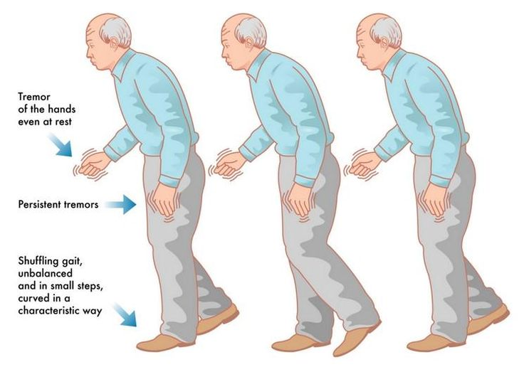 Parkinson's results from the death of nerve cells in the #brain is a chronic degenerative @neurological disorder.