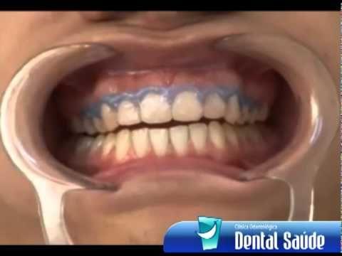 Clareamento Dentário a Laser - DENTAL SAÚDE