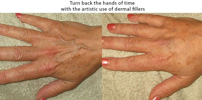 Dermal Fillers used on the hand