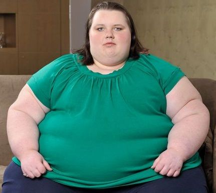 Diseases You Can Suffer From If You Are Obese. Find Out!