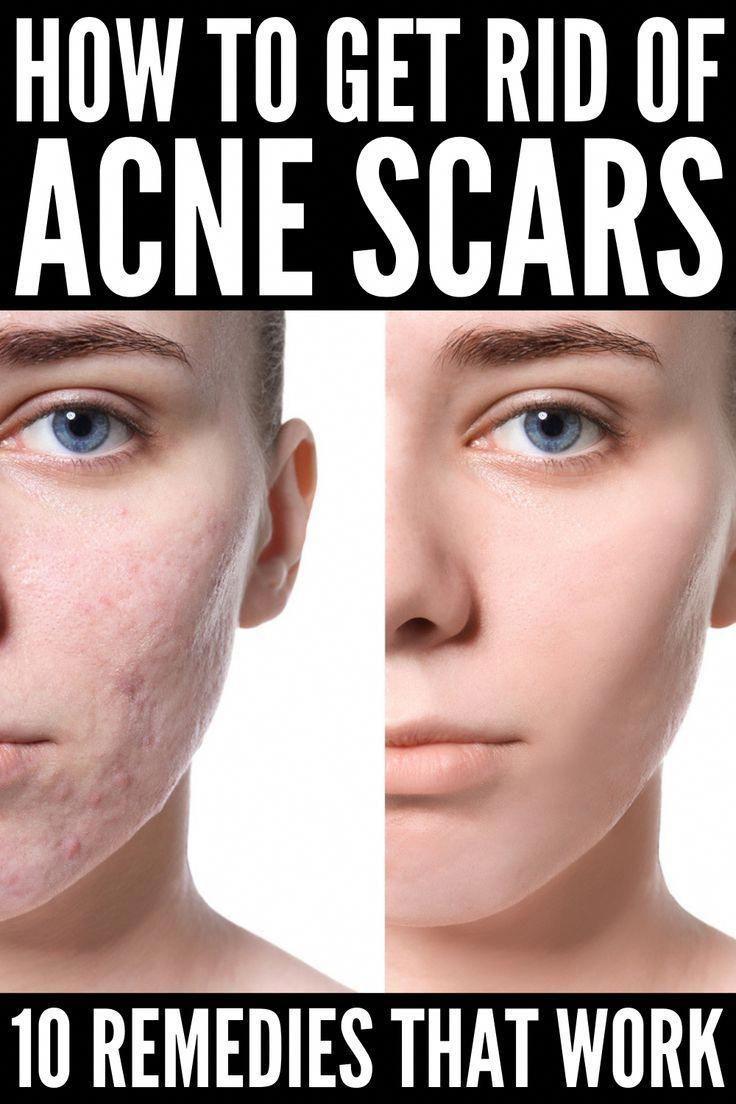 Pin On Skin Care 50 Plus