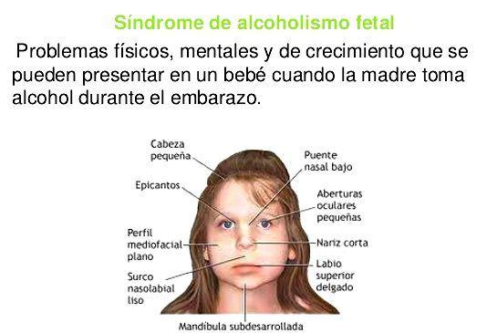alcoholismo fetal