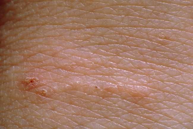 Slideshow: Scabies Symptoms, Cause, and Treatments | I've