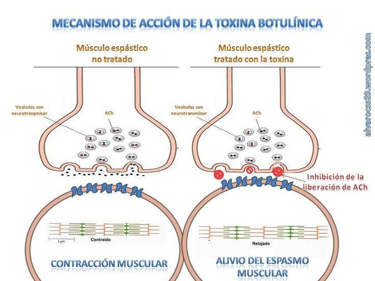 toxina-botulnica.jpg (960×720)