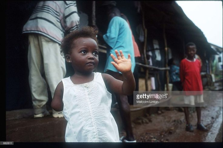 Memunata Kanu stands at the Murray Town amputee camp August, 1999 near Freetown, Sierra Leone. Kanu, 2, was mutilated by the guerrilla forces of the Revolutionary United Front, and is the youngest known survivor of such an attack.