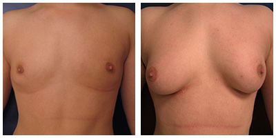 transsexual breast enlargements