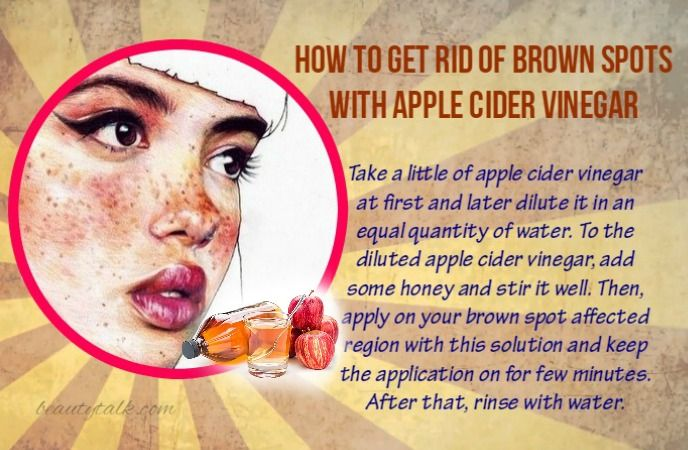 28 Ways On How To Get Rid Of Brown Spots On The Skin Naturally