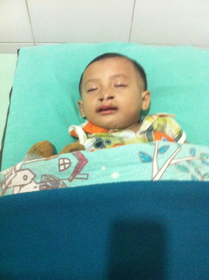 Radjah waking up after his operation to close the palate. Boy from Sumba.