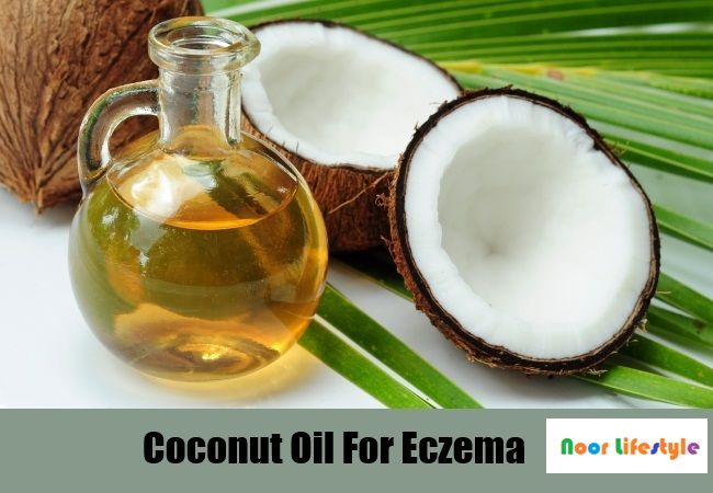 Alternative Therapies | Natural Treatments | National Eczema See More details at: http://bit.ly/1HMLfTb