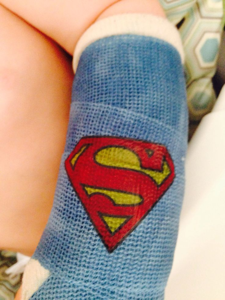 best 25 broken arm cast ideas on pinterest arm cast