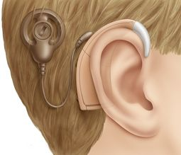 "Big Market Research ""Global Cochlear Implants Industry"" Size, Share, Industry Trends, Demand.Visit for more info @ http://www.bigmarketresearch.com/global-cochlear-implants-industry-2015-deep-research-report-market The Global Cochlear Implants Industry, report focuses on global major leading industry players providing information such as company profiles, product picture and specification, capacity, production, price, cost, revenue and contact information."
