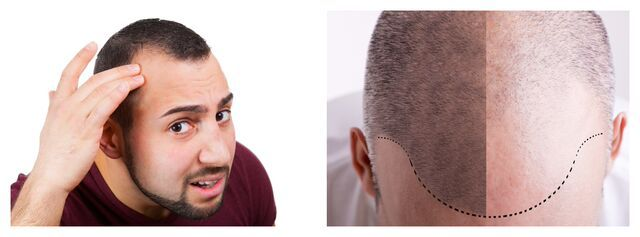 Turkey Leads the World in Hair Transplant Surgery!  Contact Us Today!