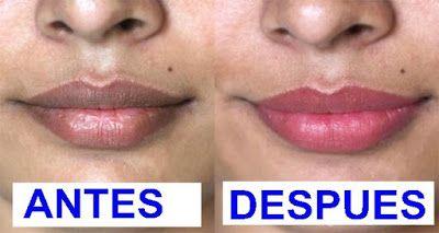 La Buena Salud Es Vida: Increíble truco para blanquear Labios oscuros natu...