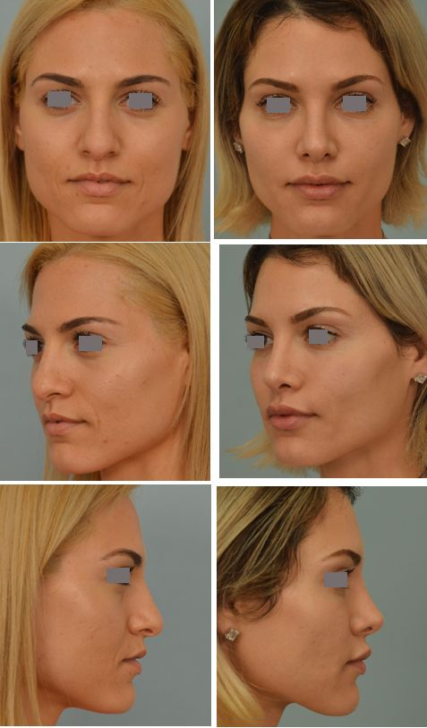 Closed rhinoplasty Dr. Vladimir Grigoryants