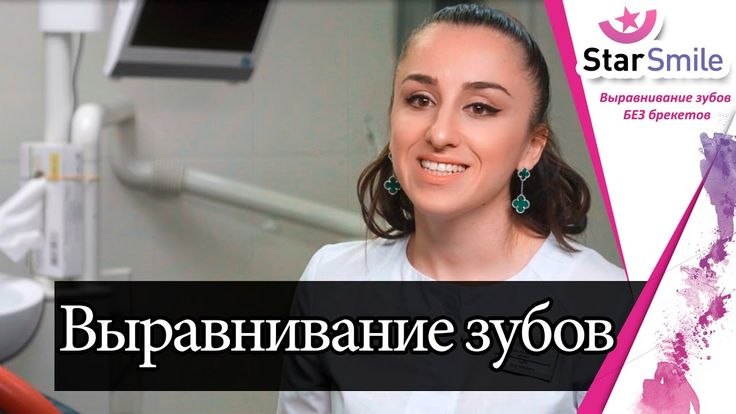 Teeth alignment without braces. Straight teeth and a beautiful smile in women.  Braces we tried to align the teeth for about two years  Patient 1: At some point I came to the system of braces, I wore them  for about two years.    https://youtu.be/pdWNtiGdhUA  #Выравнивание_зубов_без_брекетов
