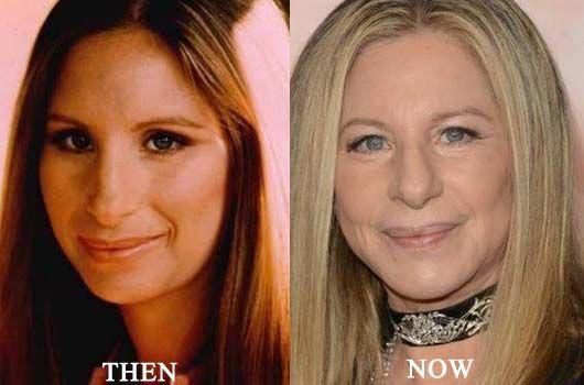 Barbra Streisand Before After Plastic Surgery Facelift, Nose Job