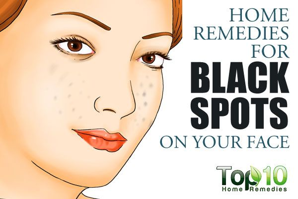 Prev post1 of 3Next You need to a flashplayer enabled browser to view this YouTube video Many black spots or dark patches can be easily lightened or eliminated to restore a glowing facial complexion. Dark spots, patches and other marks on the face may be due to excess secretion of melanin on the skin. Some