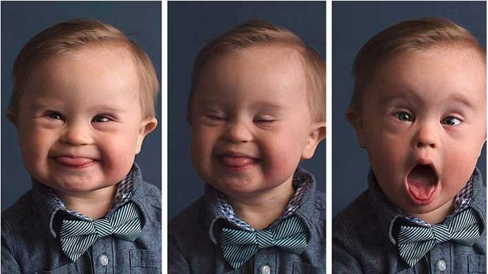 "Boy With Down Syndrome Rejected by Osh Kosh B'gosh Because They Never ""Requested a Special Needs Baby"" - http://eradaily.com/boy-syndrome-rejected-osh-kosh-bgosh-never-requested-special-needs-baby/"