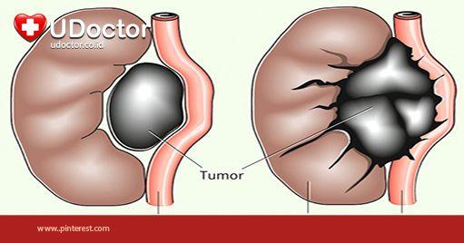 """""""Ternyata Inilah Perbedaan Antara Tumor dan Kanker => http://goo.gl/Y88l3X"""""""