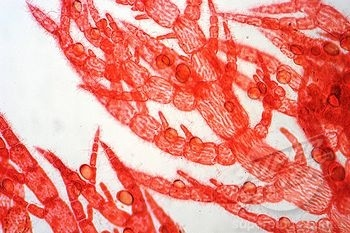 86 best images about Protist on Pinterest | Green algae ...  86 best images ...