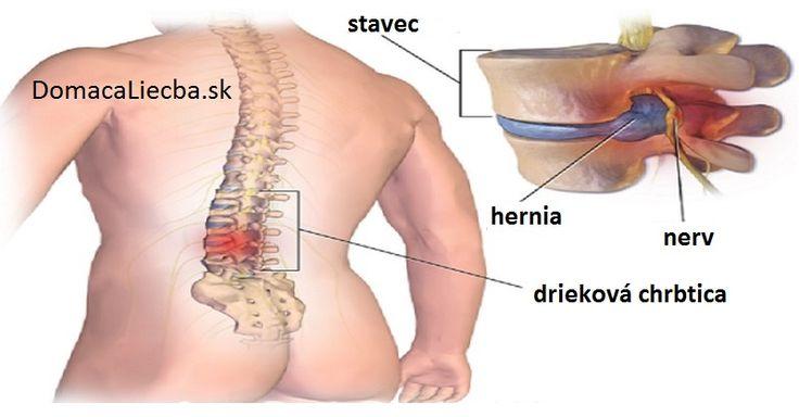 Vedeli ste, že mnohé bolesti chrbta dokážete zmierniť stimuláciou správnych bodov na nohách. Zistite, ktoré body to sú.