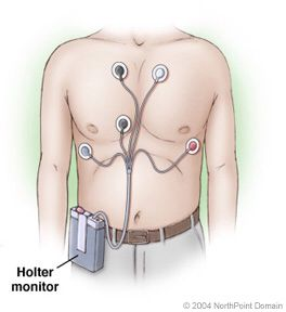 Holter monitor placement
