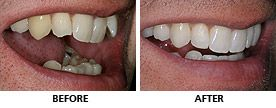 The upper teeth were straightened with an Inman aligner in only 8 weeks. Another Inman Aligner was used to align the lower teeth in an amazing 6 weeks! Tooth whitening and composite bonding was used to add the finishing touches. http://www.praisdental.co.uk/straightening/