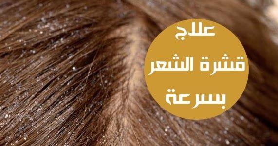 قشرة الشعر من اكثر المشاكل المزعجة لدى العديد من الاشخاص سواءا رجالا كانو او نساءا لكن عصير البصل هو الحل الامثل والسهل للتخلص من القش Lockscreen Movie Posters