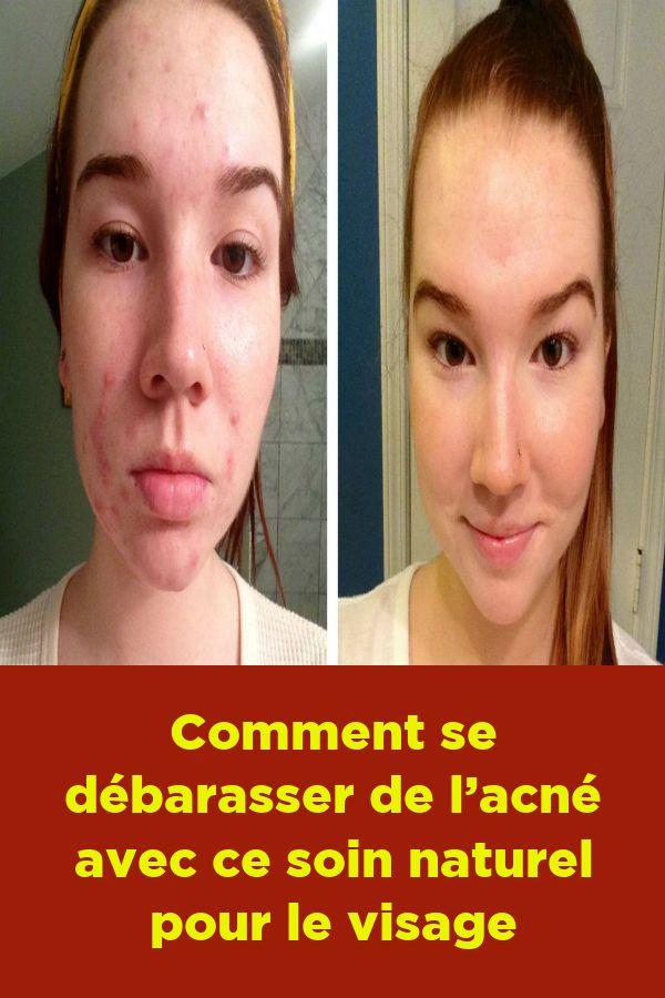 Comment se débarasser de l'acné avec ce soin naturel pour le visage