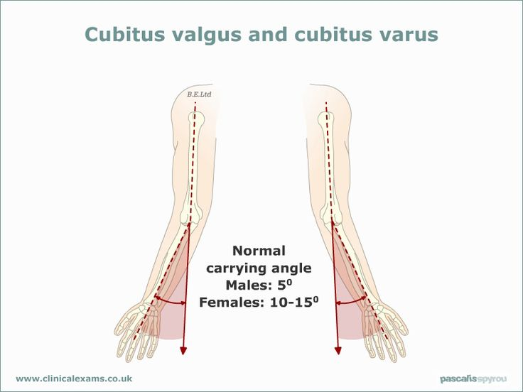 www.health-gossip.com Cubitus valgus is increase in carrying angle and varas is decrease. Usually women has more carrying angle than male. This image will help you to remember the exact normal angles. #cubitus #carrying-angles