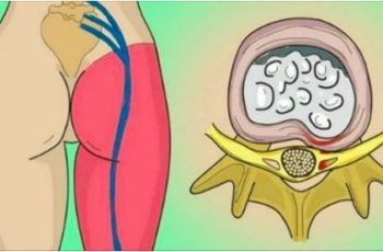 How to Release the Pinched Nerve in the Lumbar Area (sciatica)- 2 Simple Ways to Get Rid of the Pain