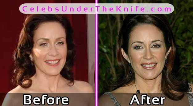 Patricia Heaton Plastic Surgery Pics Before After #celebsundertheknife #celebs #celebrity #plasticsurgery #celebritysurgery