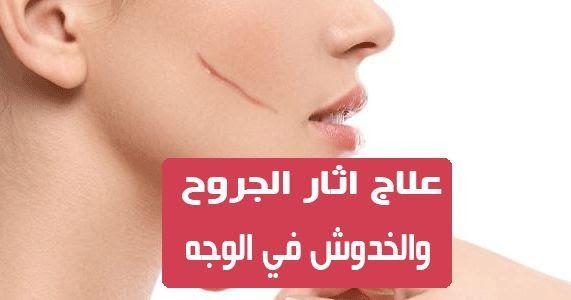 علاج اثار الجروح والخدوش في الوجه تتعرض البشرة إلى العديد من العوامل المختلفة التي تؤثر على مظهرها وجمالها وخصوصا العوامل العرضية التي تتم Movie Posters Movies