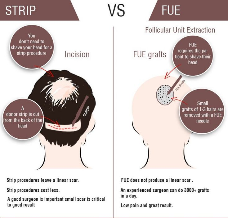 Most Common Types of Hair Transplant #striphairtransplant #hairtransplant #fut