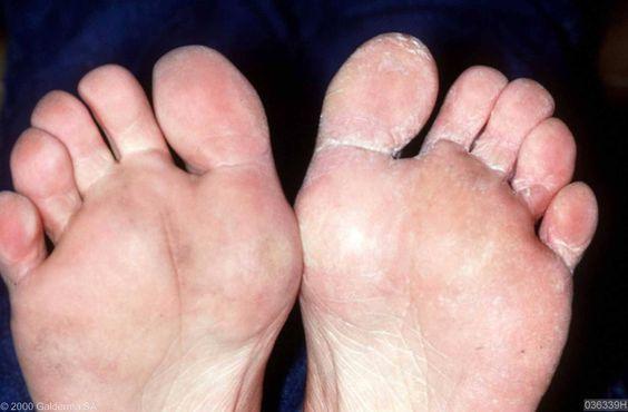 Nooit meer last van voetschimmel met deze simpele en effectieve tip!: