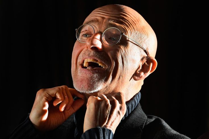 FIRST HUMAN HEAD TRANSPLANT SUCCESSFULLY PERFORMED ON CORPSE SERGIO CANAVERO ANNOUNCES