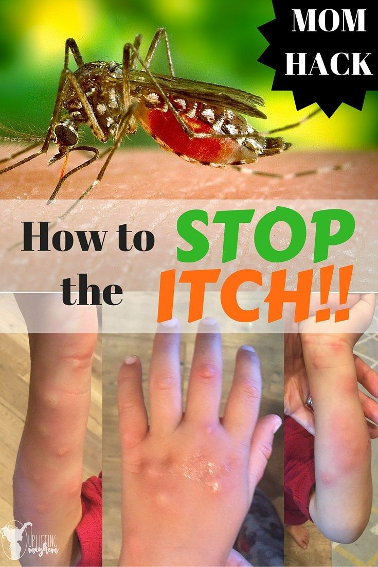 Mosquito bites are not fun. Here is how to stop the Itch! Great mom hack!