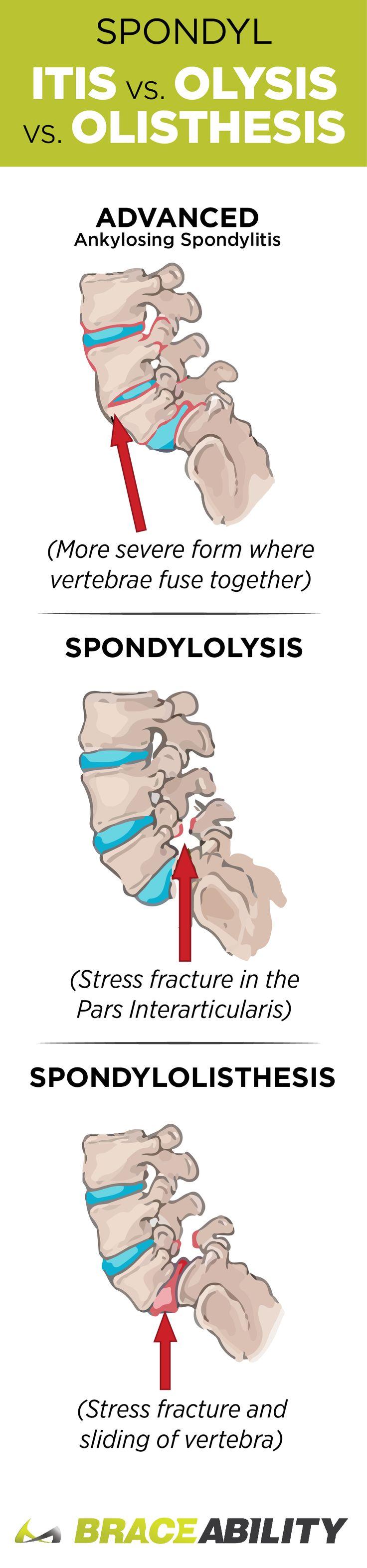 what is spondylolysis and spondylolisthesis