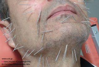 ΑΝΑΜΟΡΦΩΣΗ ΠΡΟΣΩΠΟΥ ΚΑΙ ΣΩΜΑΤΟΣ ΧΩΡΙΣ ΕΓΧΥΣΗ ΥΛΙΚΟΥ ΚΑΙ ΧΩΡΙΣ ΧΕΙΡΟΥΡΓΕΙΟ ΕΥίασις Κηφισιά: Acu-Needle: Tεχνική για αναίμακτο facelift