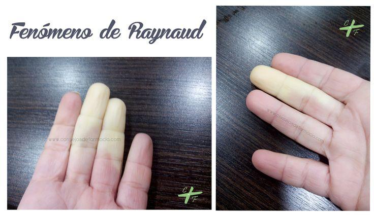 Fenómeno de Raynaud #hazlasvisibles #Raynaud #farmacia #salud  #EnfermedadesRaras  http://www.consejosdefarmacia.com/2015/02/fenomeno-raynaud.html