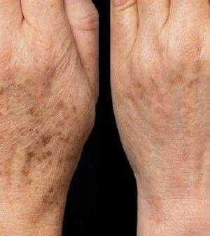 éjszakai kézpakolás öregedési foltok ellen